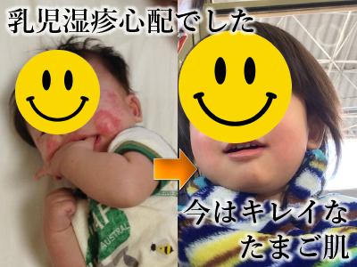 乳児湿疹 アロマ
